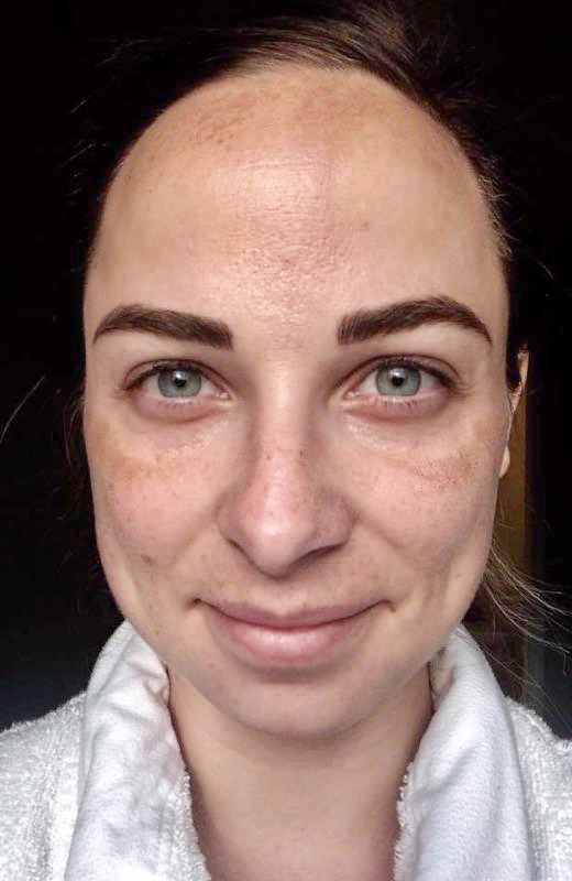 Patient Before Stem Cell Microneedling