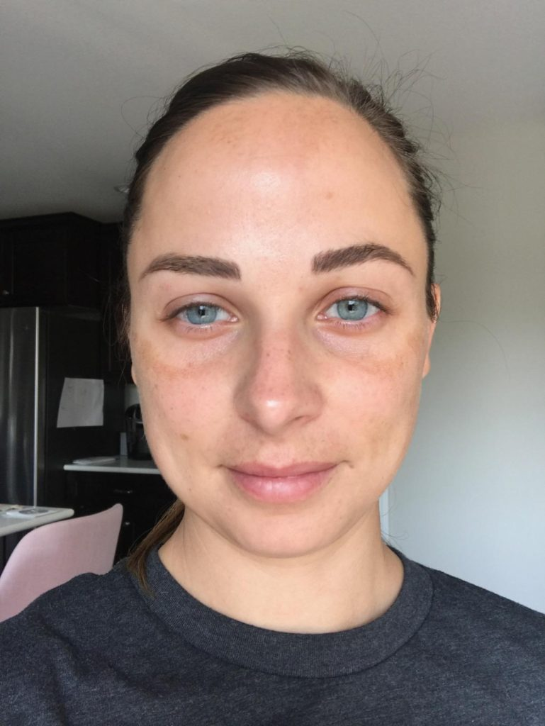 After AnteAGE® Stem Cell Microneedling